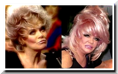 Jan Crouch Plastic Surgery – The Plastic Goddess
