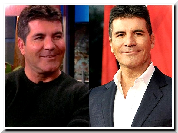 Simon Cowell Admit to Use Botox Injection but Rejects to Undergo Plastic Surgery