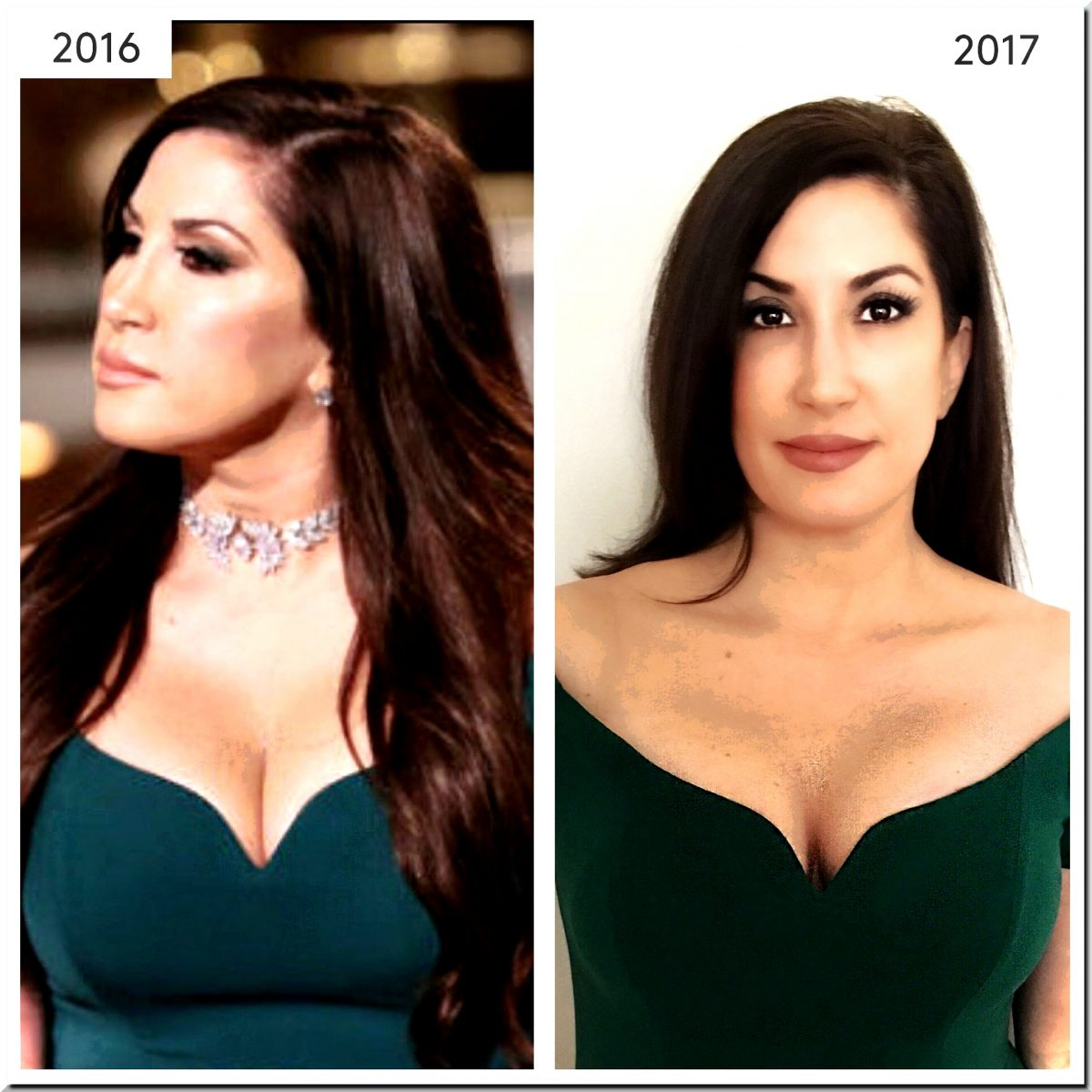 Jacqueline Laurita Shocking Changes